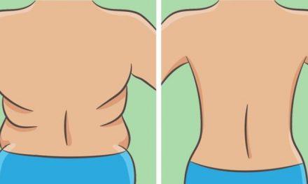 Débarrassez-vous des plis dans le dos et les côtés en seulement 21 jours !
