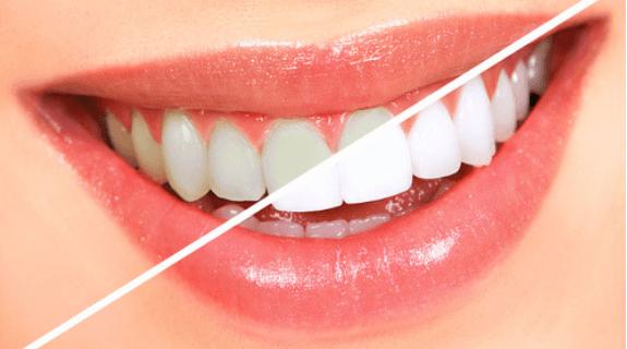 Blanchiment Des Dents  Avec Des Ingrédients Naturels