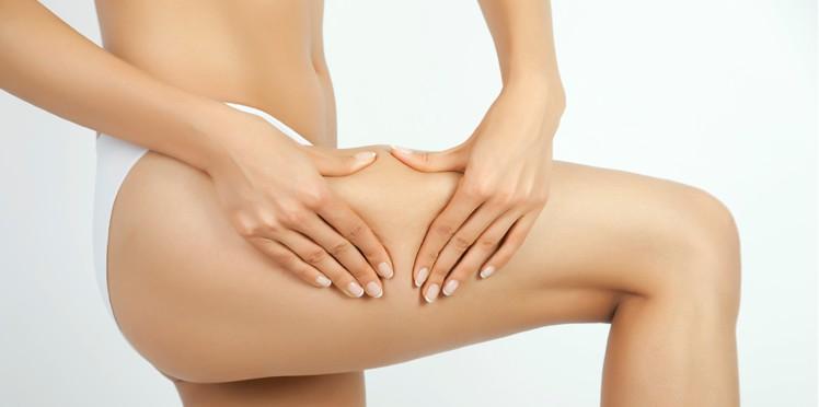 Perdre la cellulite : comment vaincre et éliminer la peau d'orange ?
