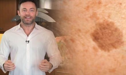 Le remède naturel et puissant d'un dermatologue pour enlever les taches brunes