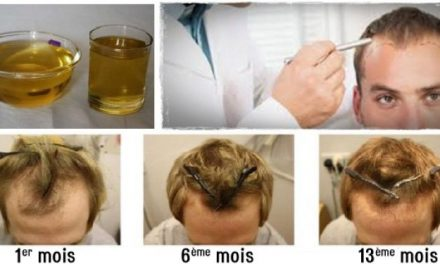 Voici comment faire repousser vos cheveux et les épaissir naturellement