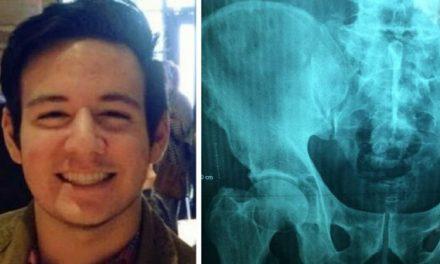 Un adolescent se plaint de maux d'estomac à l'école – il meurt à peine deux heures plus tard