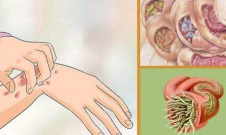 19 signes que des parasites vivent dans votre corps