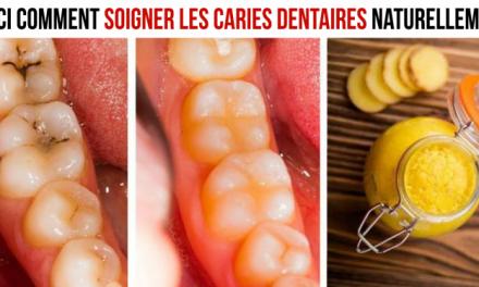 Voici comment soigner les caries dentaires naturellement