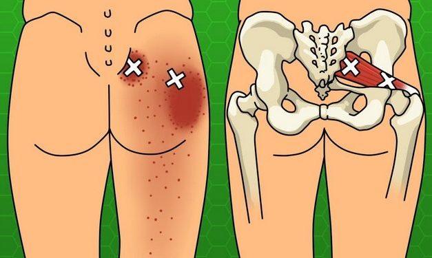 Soulagez vos douleurs de sciatique, à la hanche et dans le bas du dos grâce à ces astuces