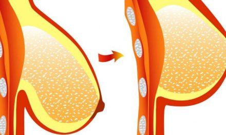 Voici comment raffermir ses seins en deux étapes