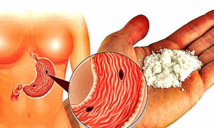 Tout le monde l'adore : 8 manières d'utiliser le bicarbonate de soude à la place des médicaments