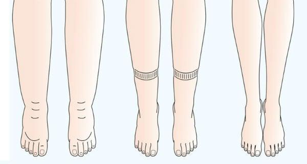 Vous avez des kilos d'eau emprisonnés dans vos jambes, voici 6 manières de les éliminer